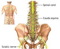 Define Cauda Equina Syndrome