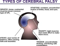 Causes of Cerebral Palsy Symptoms in Children