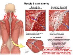 Causes of Chronic Muscle Pain