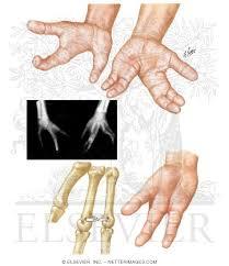 Explain Congenital Hand Deformities