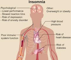 Natural Treatment for Cure Insomnia