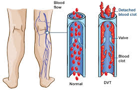 Major Facts for Deep Vein Thrombosis