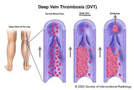 Explain Deep Vein Thrombosis