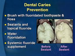 Importance of Dental Cavity Prevention