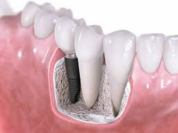 Power of Dental Implants