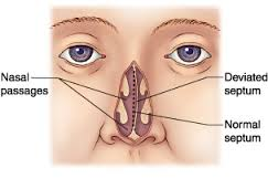 Symptoms and Treatment for Deviated Septum