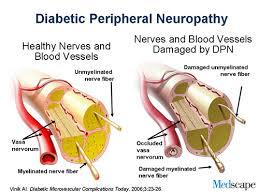 Define Diabetic Neuropathy Treatment