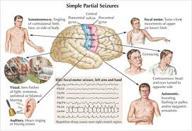 Explain Types of Epilepsy Seizures