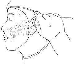 Some Advantages of Facial Liposuction