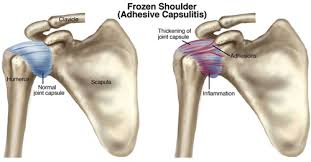 Causes and Treatment Frozen Shoulder