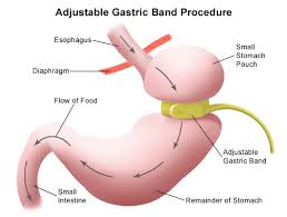 Define and Discuss on Gastric Banding