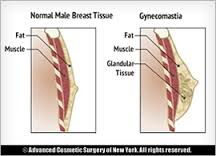 Define and Discuss on Gynecomastia
