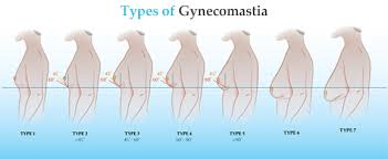 Treatment of Gynecomastia