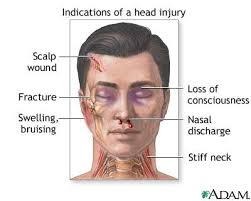 Cause of Head Trauma Injury