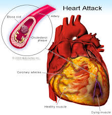 Treatment to Reduce Heart Attacks