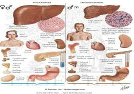 Treatment and Symptoms of Hemochromatosis