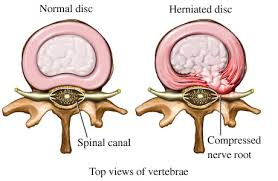 Chiropractic Treatment of Herniated Discs