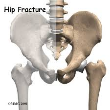 Different Types of Hip Fractures