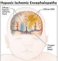 Define Hypoxic Ischemic Encephalopathy