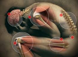 Diagnosing and Treating Joint Pain