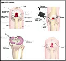 Procedure of Knee Dislocation Surgery