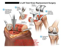 Explain Knee Replacement Surgery Operation