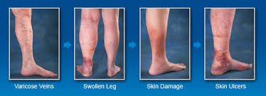Causes of Leg Swelling