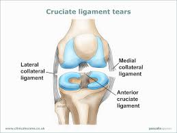 Benefits of Surgery for Ligament Tears