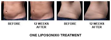 Define and Discuss on Liposonix Treatment