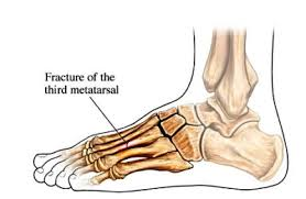 Treatment for Metatarsal Stress Fractures