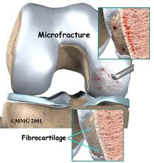 Treatment Procedure of Microfracture Surgery