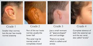 Define and Discuss on Microtia