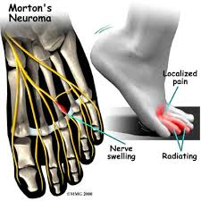 Details about Mortons Neuroma