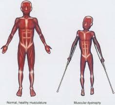 Define Muscular Dystrophy
