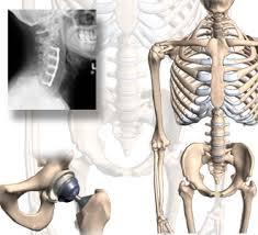 Who Needs Orthopedic Surgery