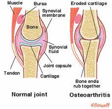 Explain Osteoarthritis Treatment of the Knee