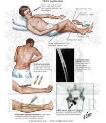 Explain Symptoms of Osteomyelitis