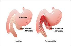 Causes and Symptoms of Pancreatitis