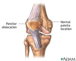 Causes and Prevention Patellar Dislocation