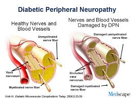 Diabetic Foot Ulcers and Peripheral Neuropathy