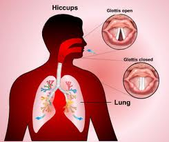 Define and Discuss on Persistent Hiccups