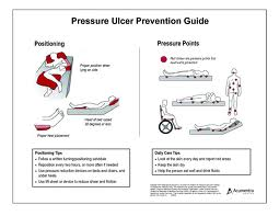 Pressure Ulcer Prevention Method