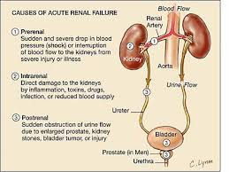 Care Renal Failure through Homemade Remedies