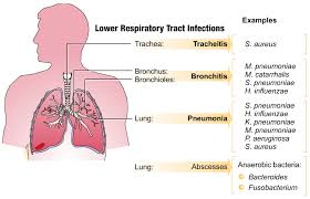 What are the Respiratory Infections