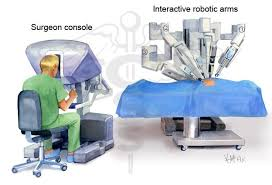 Advantages of Robotic Surgery