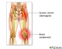 Best Sciatic Nerve Treatments