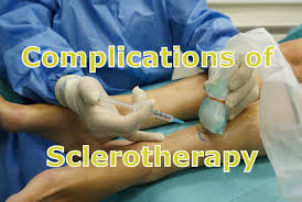 Benefits of Sclerotherapy Training