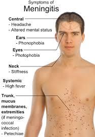 Spotting the Signs of Meningitis