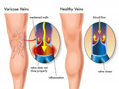 Effective Spider Vein Treatment
