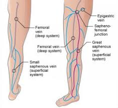 Spider Vein Treatment for Healthy Life
